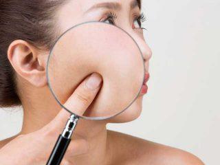 毛穴クレーターの原因と治し方を徹底解説!セルフケアと皮膚科の治療で改善